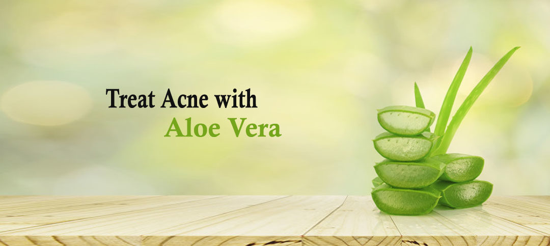 Treat acne with Aloe Vera: Simple DIYs that we all can do